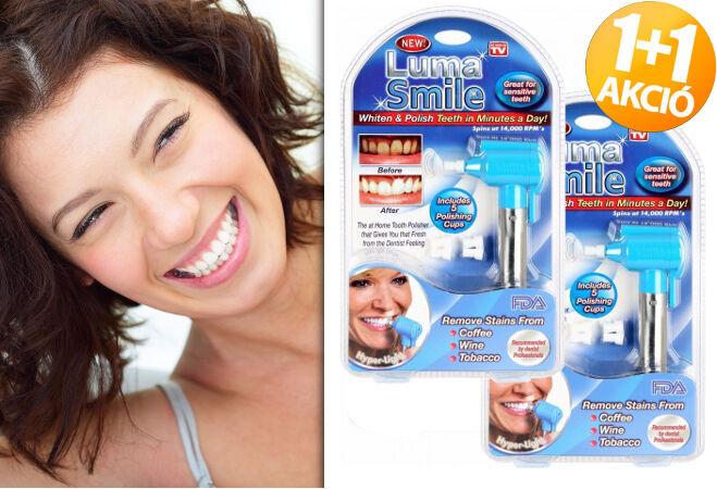 2 darab Luma Smile fogfehérítő és polírozó szett